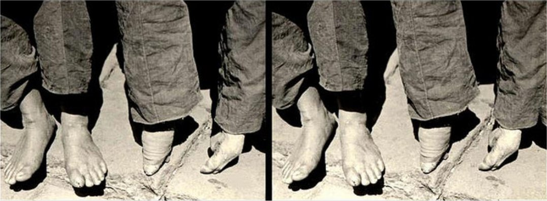 China 30 3d Foot Binding And Suffering